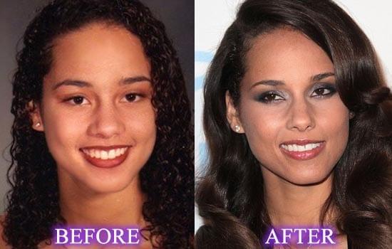 Alicia Keys avant et après chirurgie esthétique