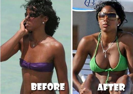 Kelly Rowland avant et après chirurgie esthétique