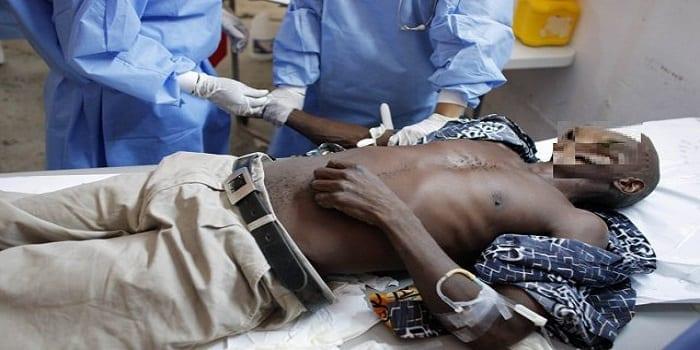 348230-patient-souffrant-symptomes-cholera-recoit