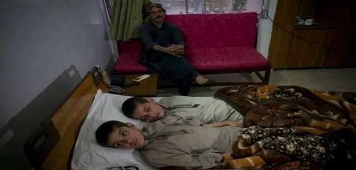 L-etrange-maladie-de-deux-freres-pakistanais-intrigue-le-web