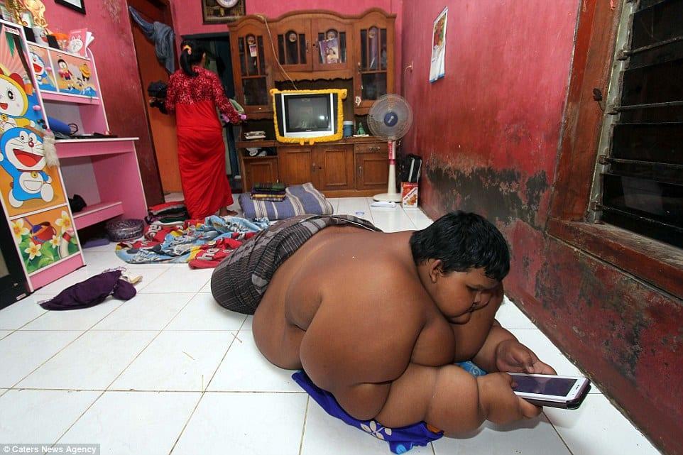 Obésité-un-enfant-indonésien-de-10-ans-pèse-déjà-192-kilos-