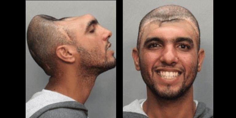 L'homme au demi-crâne arrêté. Les raisons