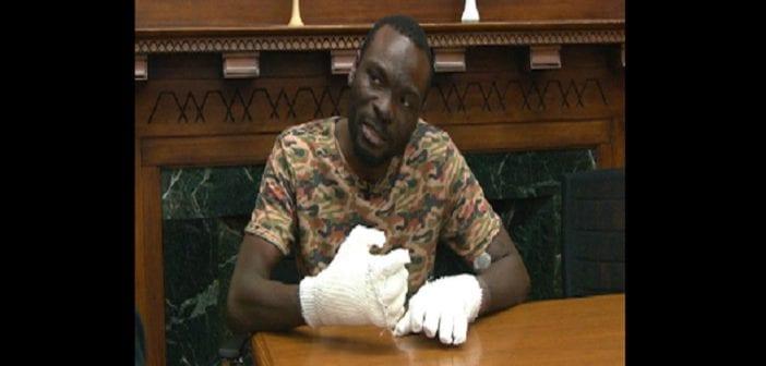 Un réfugié ghanéen perdra tous ses doigts en essayant d'entrer en Amérique: PHOTOS