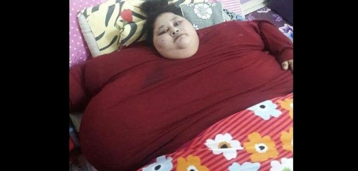 Égypte: la femme la plus grosse au monde perd 100 kilos après son opération