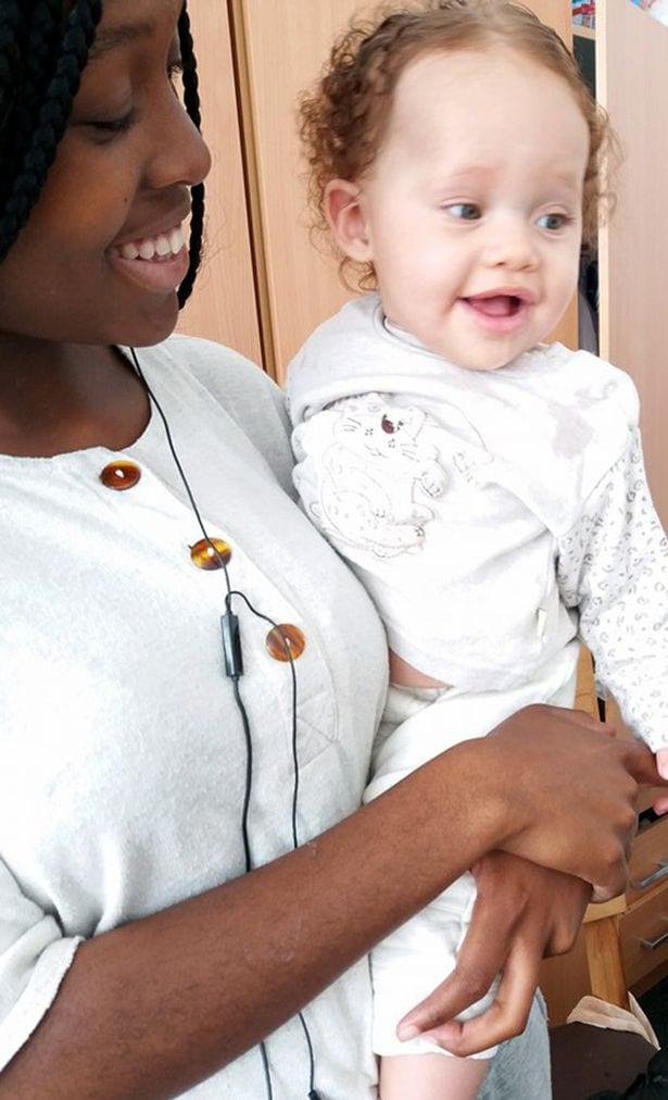 Insolite: une zimbabwéenne donne naissance à une fille blanche