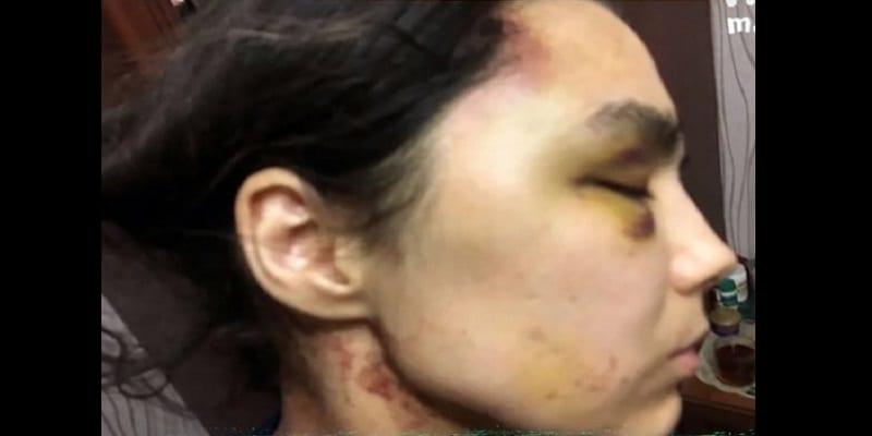 Russie : retenue comme esclave s3xuelle pendant 6 ans, elle raconte son calvaire (photos)