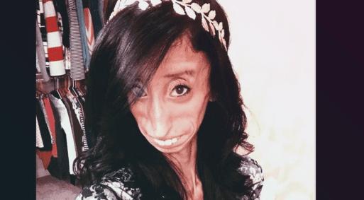 Femme Laide Photo désignée comme étant la femme la plus laide au monde, voici sa