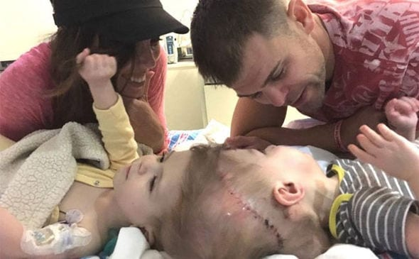 Photos: Des bébés siamois ont été séparés après 20 longues heures d'une opération chirurgicale