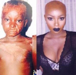 inspiration: La grande brûlée Shalom Nchoum devenue un exemple de beauté