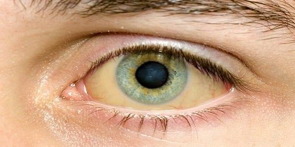 9 choses que vous révèlent vos yeux sur votre état de santé