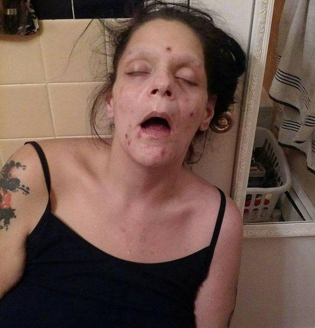 Une ex toxicomane détruite par la consommation abusive de drogues, partage des photos choquantes: PHOTOS