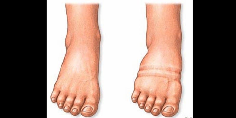 oedeme du pied