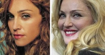 plastic-surgery-celebrities-2014-madonna-plastic-surgery-pictures—youtube-awesome