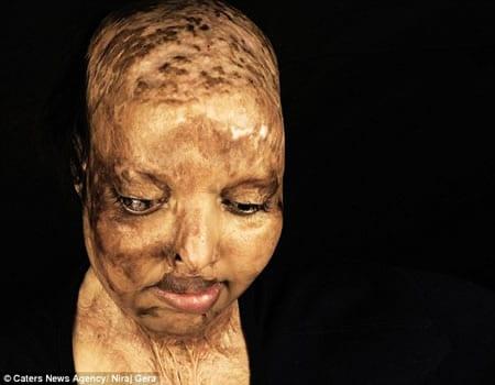 Inde-émouvant: Défigurée et aveuglée à l'acide, elle trouve l'amour à l'hôpital