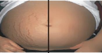 vergetures femme enceinte