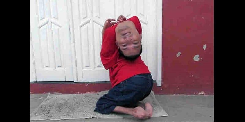 Brésil: Grâce à sa mère, cet homme né la tête à l'envers est un modèle (vidéo)