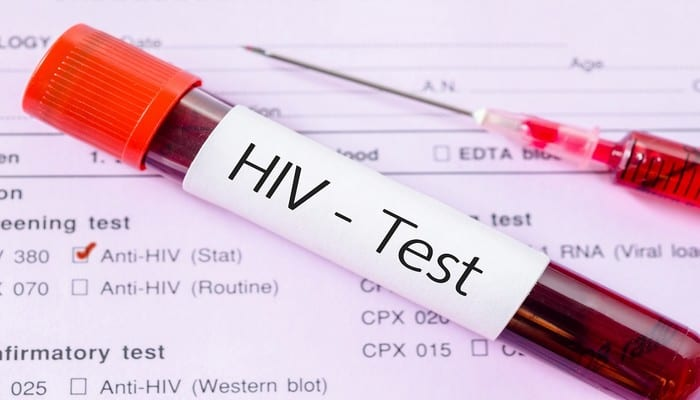 Sample blood collection tube with HIV test