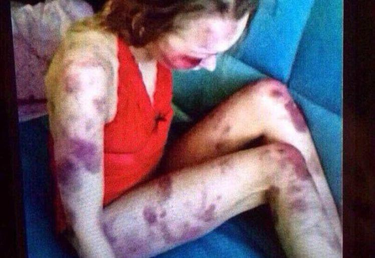 Russie: un homme bat sa femme à mort et filme la scène pour se vanter (photos)
