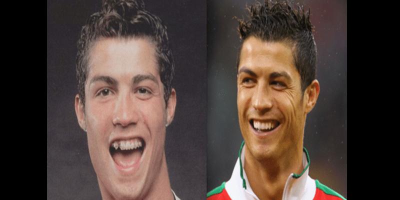 Découvrez ces célébrités du football qui ont refait leur dentition (photos)