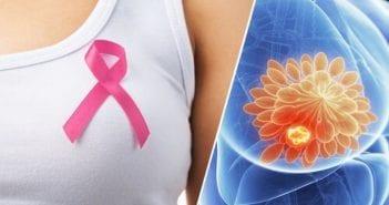 Cancer-du-sein-500×334