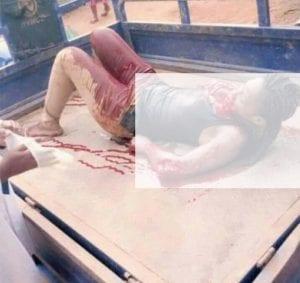 Côte d'Ivoire: L'homme qui a tailladé sa petite amie à la machette arrêté