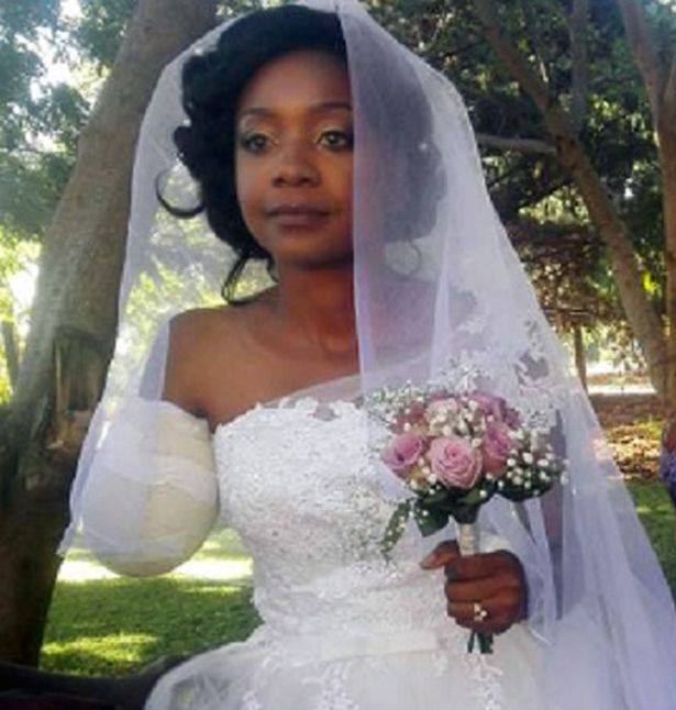Zimbabwe : Son bras arraché par un crocodile, elle se marie à l'hôpital
