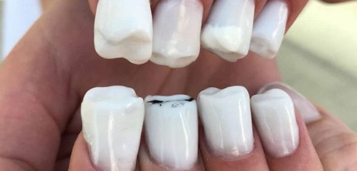 ongles-dents-manucure-tuto