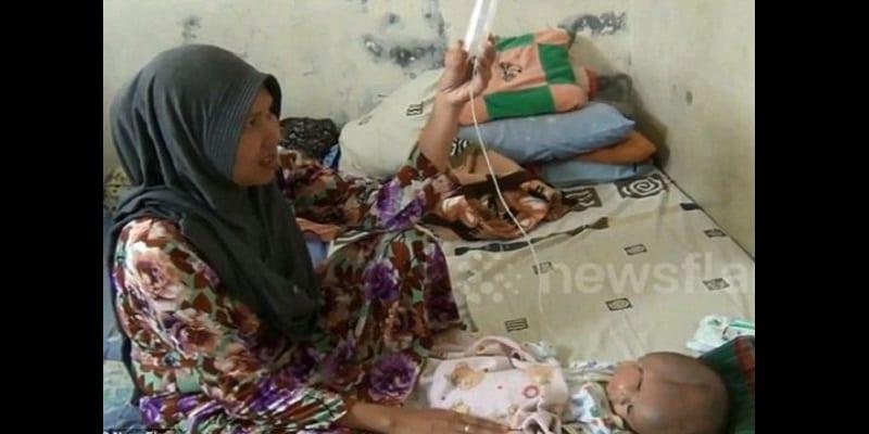 Indonésie: Un bébé naît avec deux visages, deux cerveaux et une seule tête (vidéo)
