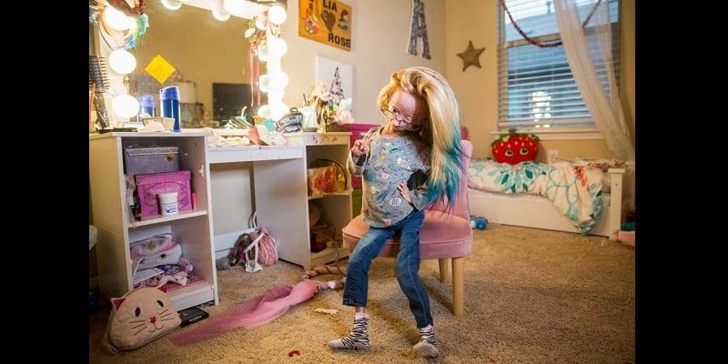 Âgée de 12 ans, elle souffre d'une maladie rare qui la rend très vieille (vidéo)