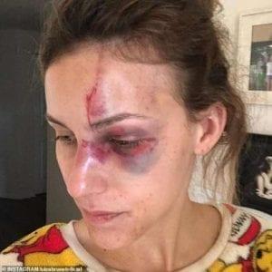Brésil: Un milliardaire bat sa petite amie pour avoir montré son décolleté sur Instagram (photos)