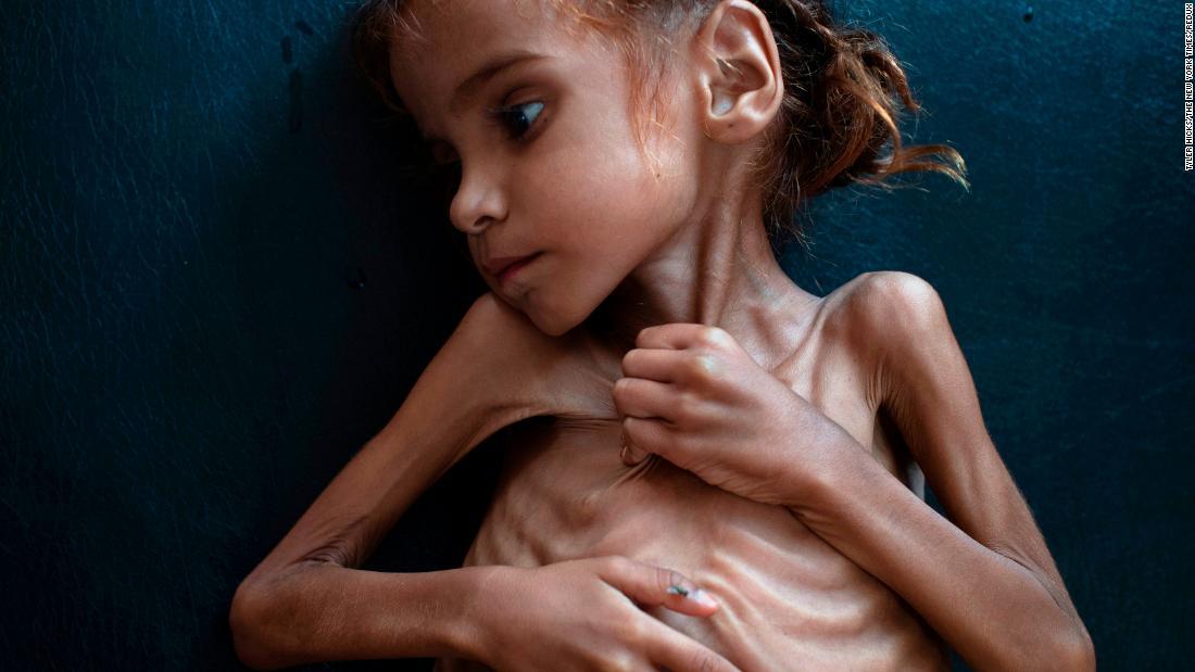 181102110435-amal-hussain-yemen-malnourished-girl-restricted-super-tease