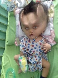 Unusual: a baby develops