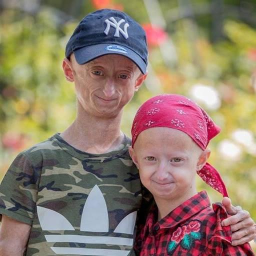 Atteints d'une maladie génétique rare, ils deviennent une source d'inspiration (photos)