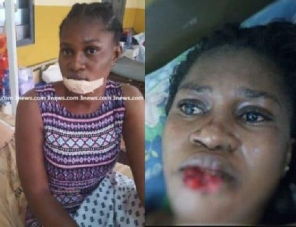 Ghana: Jalouse, elle coupe la lèvre inférieure de sa 'rivale'