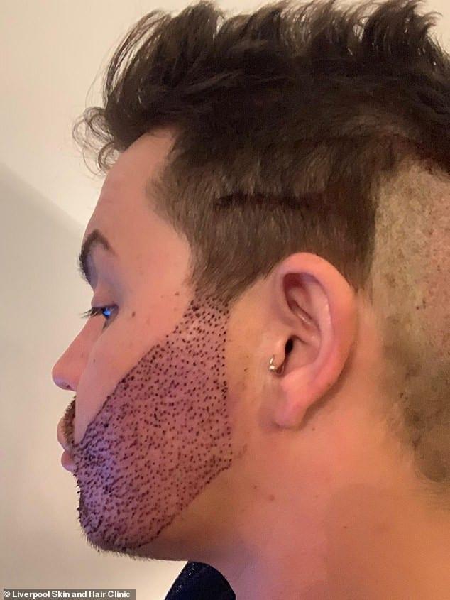 Il dépense 9 000 £ pour une greffe de barbe (photos)