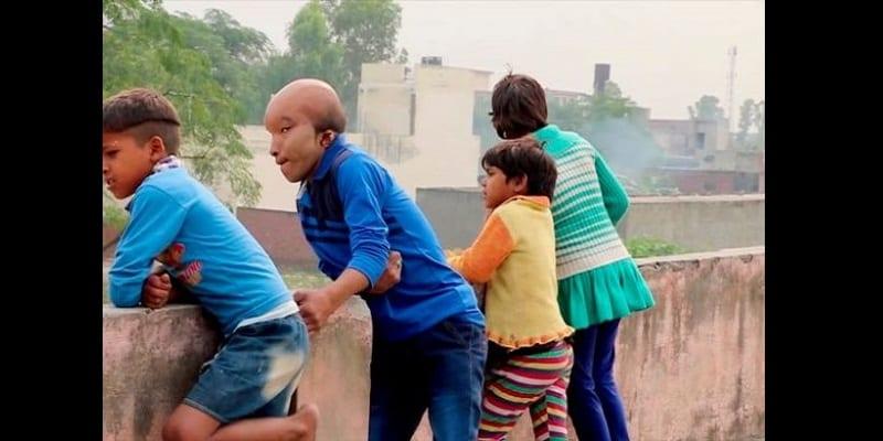 Inde: Un homme à la tête «d'alien» recherche l'amour (photos)