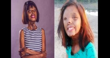 Lady-doused-in-acid-by-her-dad-because-he-wanted-a-son-shares-inspiring-new-year-message