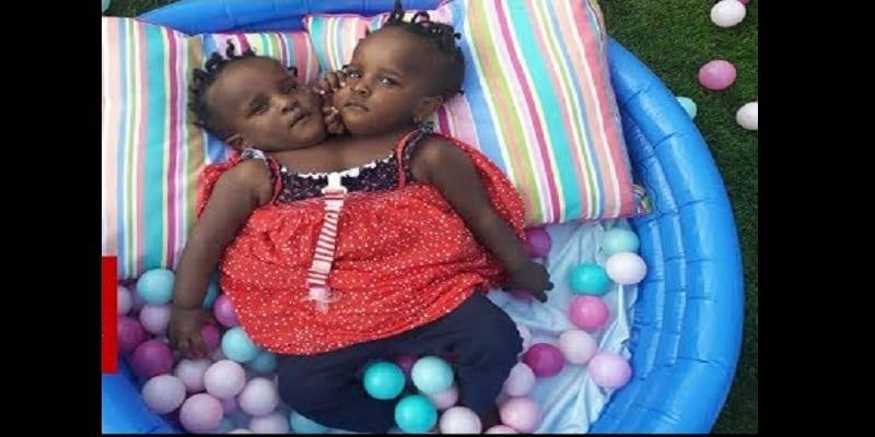 L'histoire touchante de Marieme et Ndeye, les sœurs siamoises qui luttent pour leur vie (vidéo)