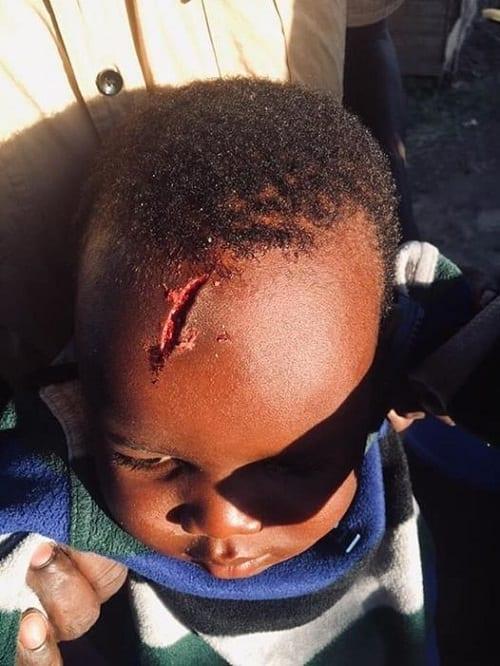 Kenya: Une domestique frappe la tête d'un enfant à l'aide d'une assiette
