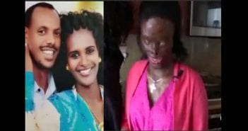 Woman-disfigured-blinded-by-acid-attack-by-her-abusive-husband-Photos
