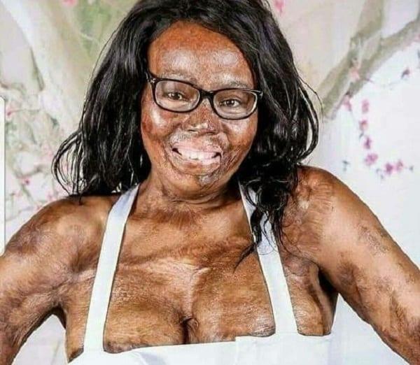 Triste: Une Nigériane perd ses deux parents, ses deux enfants, et est brûlée par son copain
