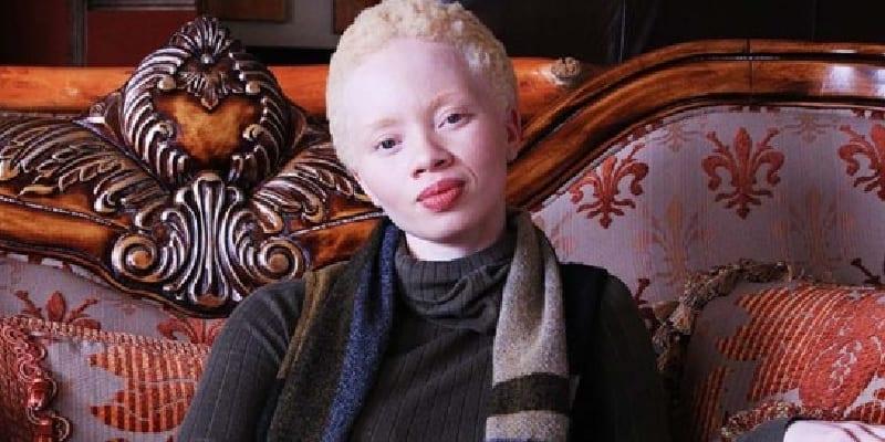 mannequin albinos