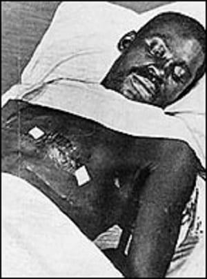 Hale Williams, premier chirurgien de race noire à établir ce record médical il y a 126 ans aux USA