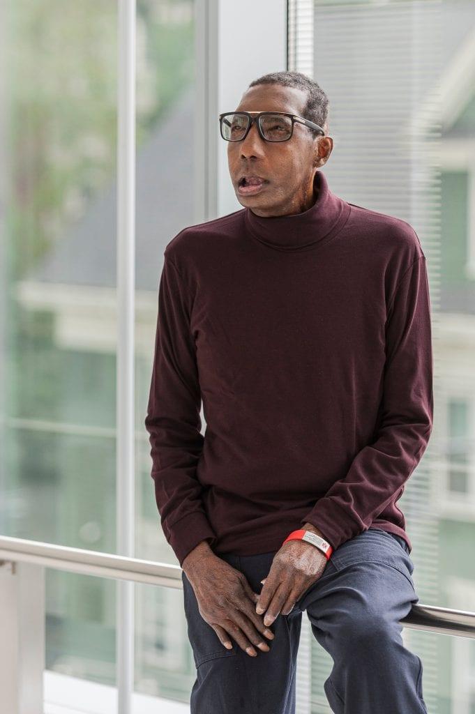 Après 18 interventions chirurgicales, il devient le premier Afro-Américain à recevoir une greffe du visage (photos)