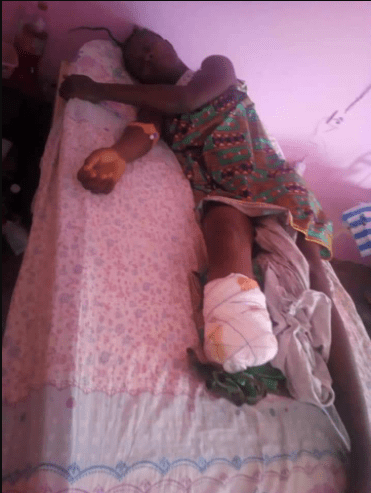 Cameroun/ Privé de ses spaghettis, il coupe le pied de sa concubine