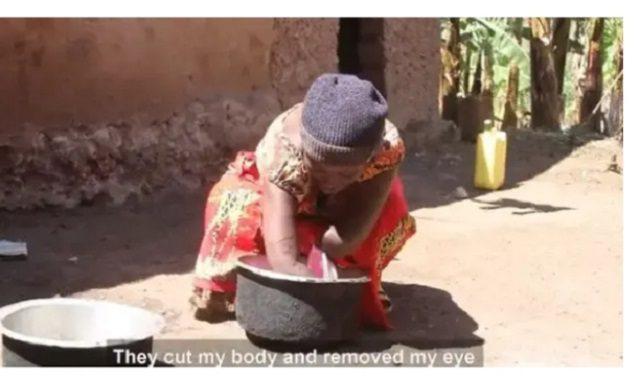 L'histoire triste d'une femme sans bras qui a dû payer un homme pour l'engrosser